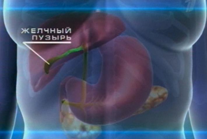 Как лечится холестериновый полип желчного пузыря?