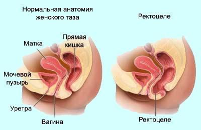Долихоколон кишечника лечение у взрослых диета