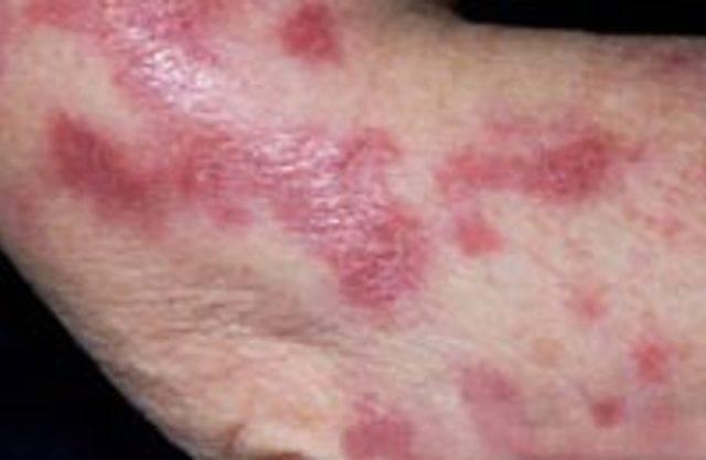 Виды туберкулеза и формы – их особенности: как появляется туберкулезная палочка
