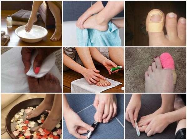 Описание препарата ногтимицин: инструкция по применению
