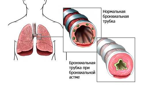 Можно ли ходить в баню при бронхиальной астме и чем это может обернуться