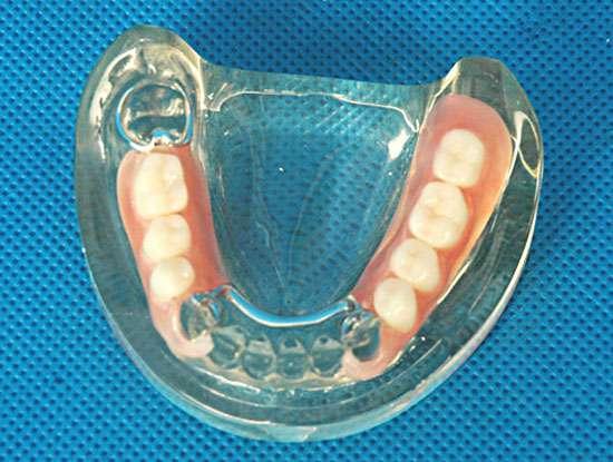 Нейлоновые протезы зубов