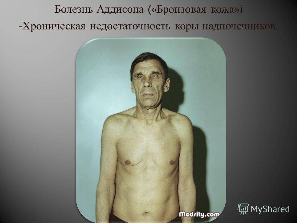 Болезнь аддисона — симптомы