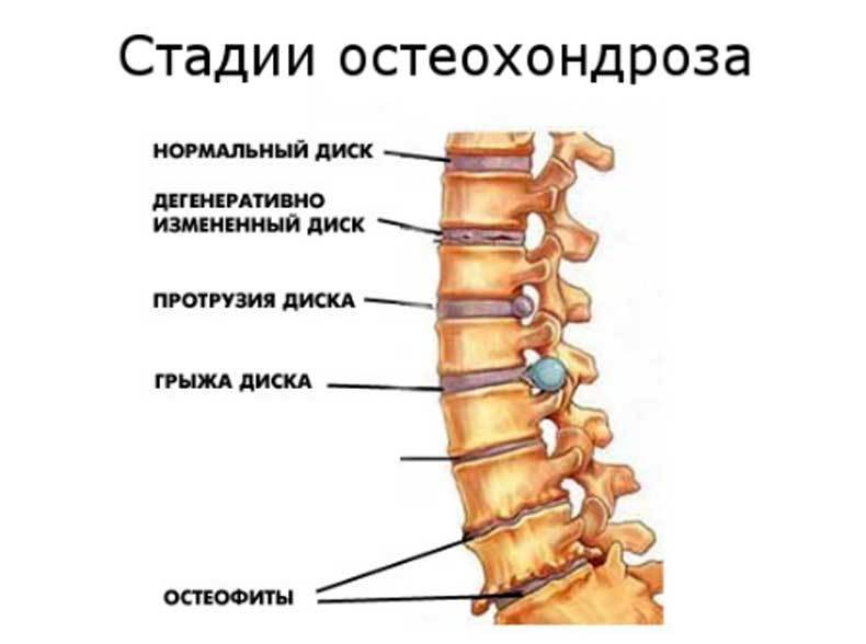 Какие народные средства применяют для лечения остеохондроза шейного отдела позвоночника?
