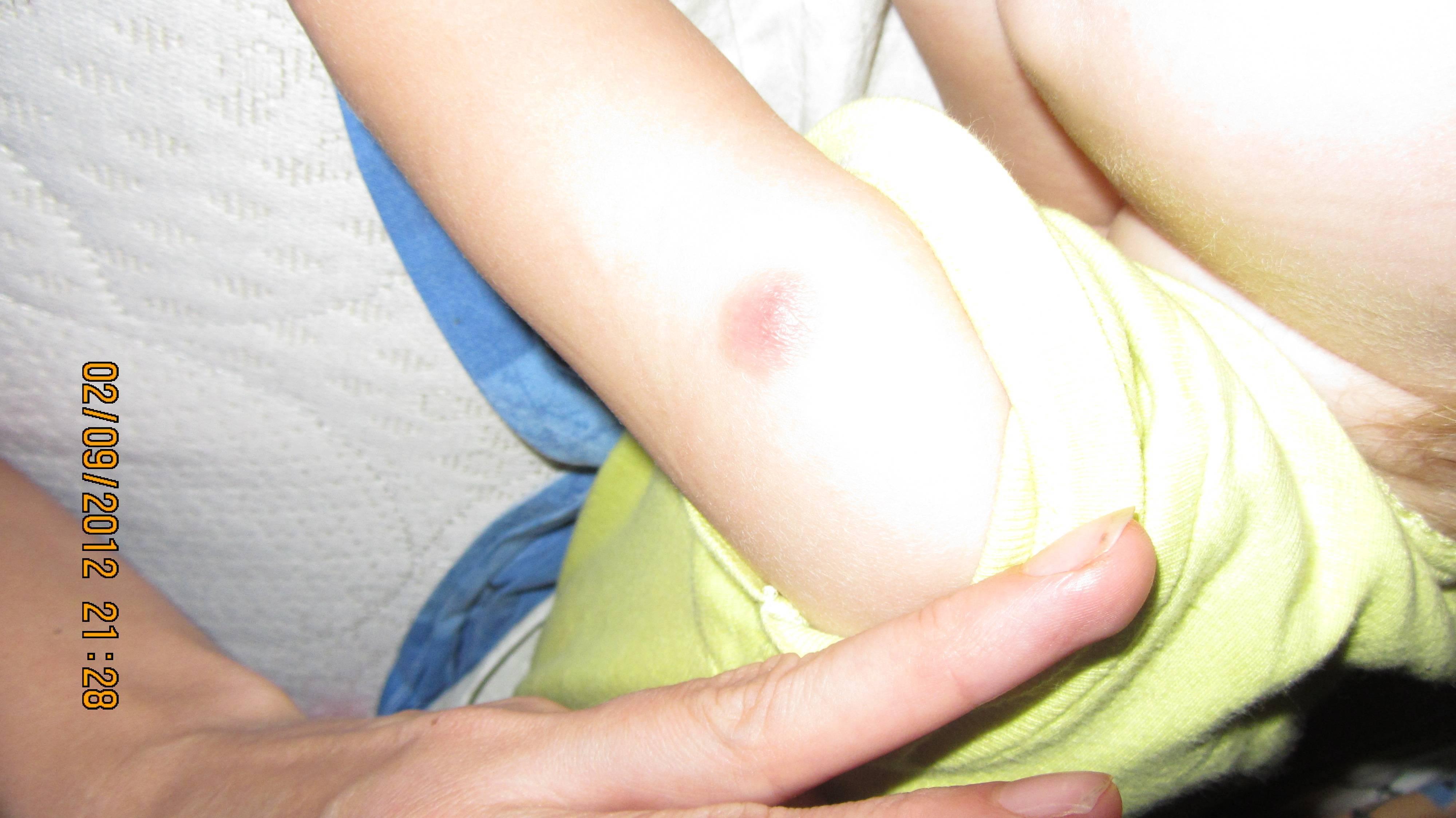Опухоль в месте прививки у ребенка: норма или патология