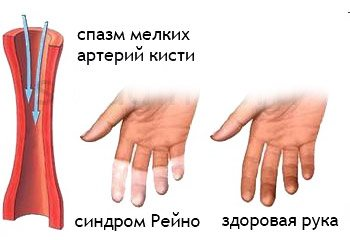 Каковы причины и симптомы болезни рейно