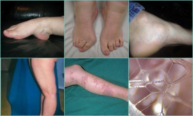 Дисплазия соединительной ткани у детей: что это, симптомы и лечение | все о суставах и связках