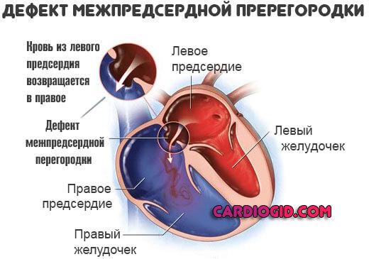 Открытое овальное окно в сердце у новорожденного
