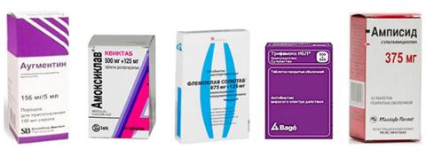 Антибиотики при пневмонии у взрослых: список, эффективность
