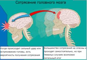 Ученые пытаются диагностировать сотрясения мозга с помощью простого анализа крови