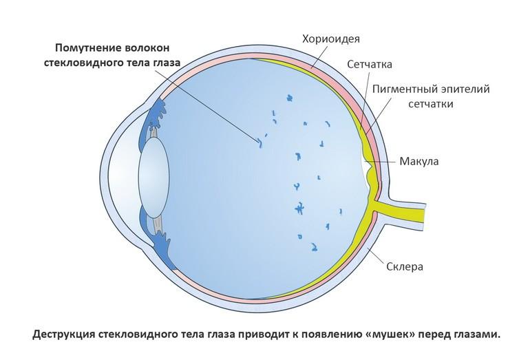 Как проявляется деструкция стекловидного тела