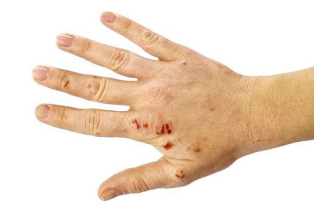 Мокнущая экзема – лечение на ногах, на руках на лице