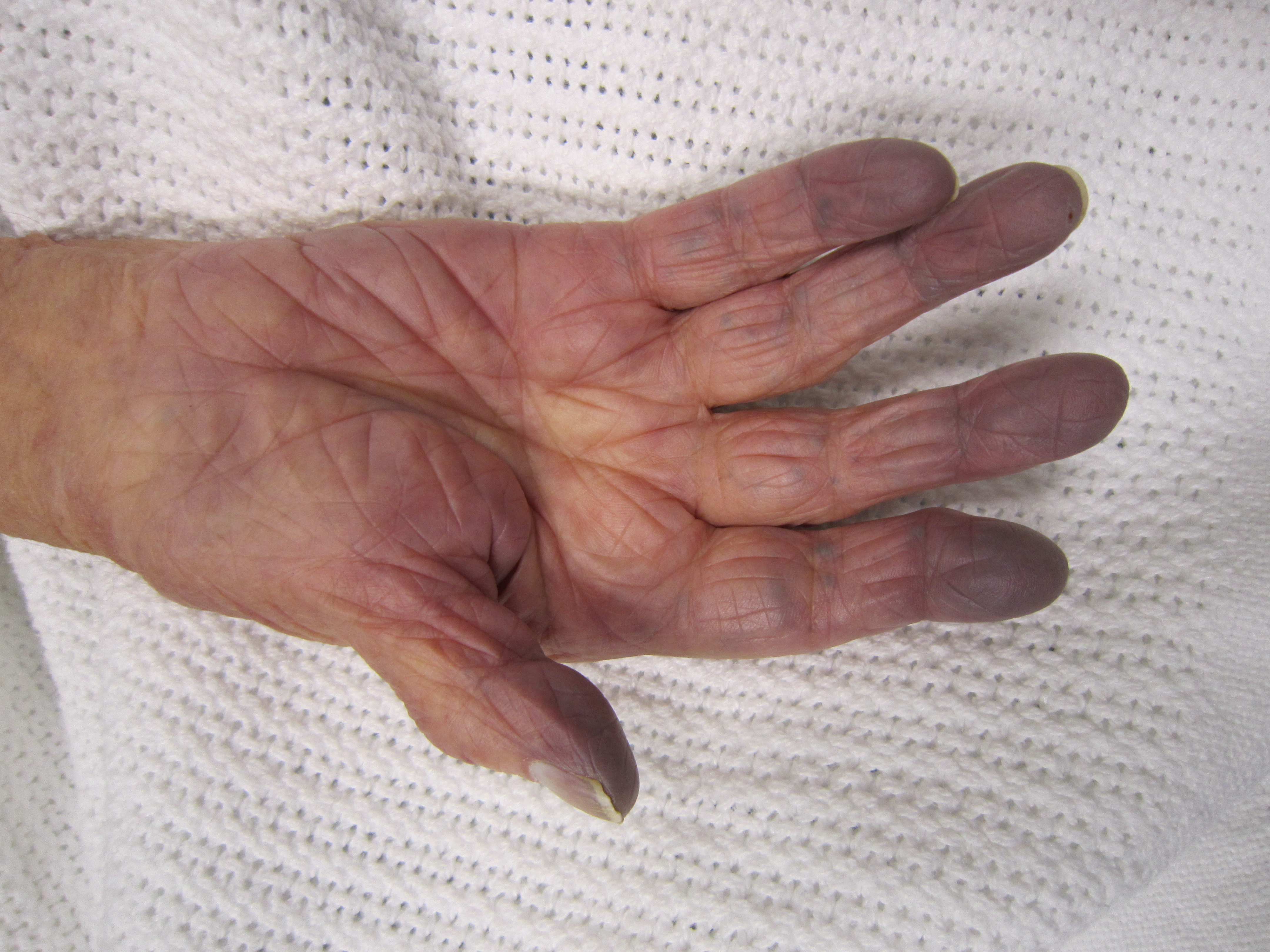 Цианоз кожи: почему возникает и как лечить