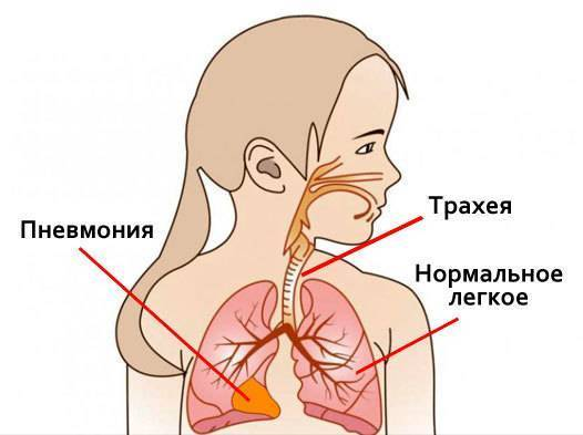 Пневмония. схема лечения у взрослого, антибиотики, народные средства, лекарства
