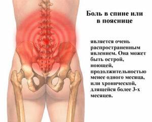Лечение шейного остеохондроза в домашних условиях: народные методы