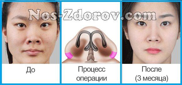 Ринопластика: за и против операции по коррекции формы носа