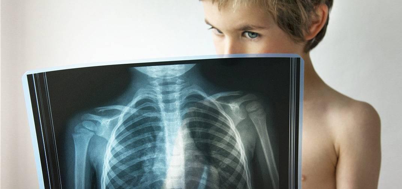 Симптомы, лечение и диагностика вторичного туберкулеза. что может спровоцировать заболевание?