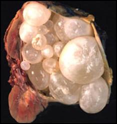 Эхинококкоз - симптомы  и лечение