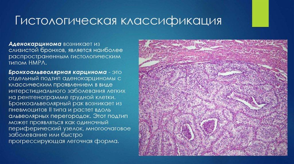 Классификация рака легкого