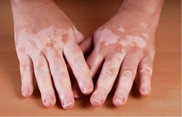 Признаки, по которым можно выявить болезнь аддисона, и терапия патологии