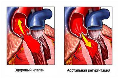 Что представляет из себя митральная регургитация 1 степени и трикуспидальная регургитация