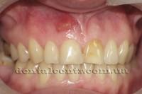 Новообразования на зубах: киста и гранулема
