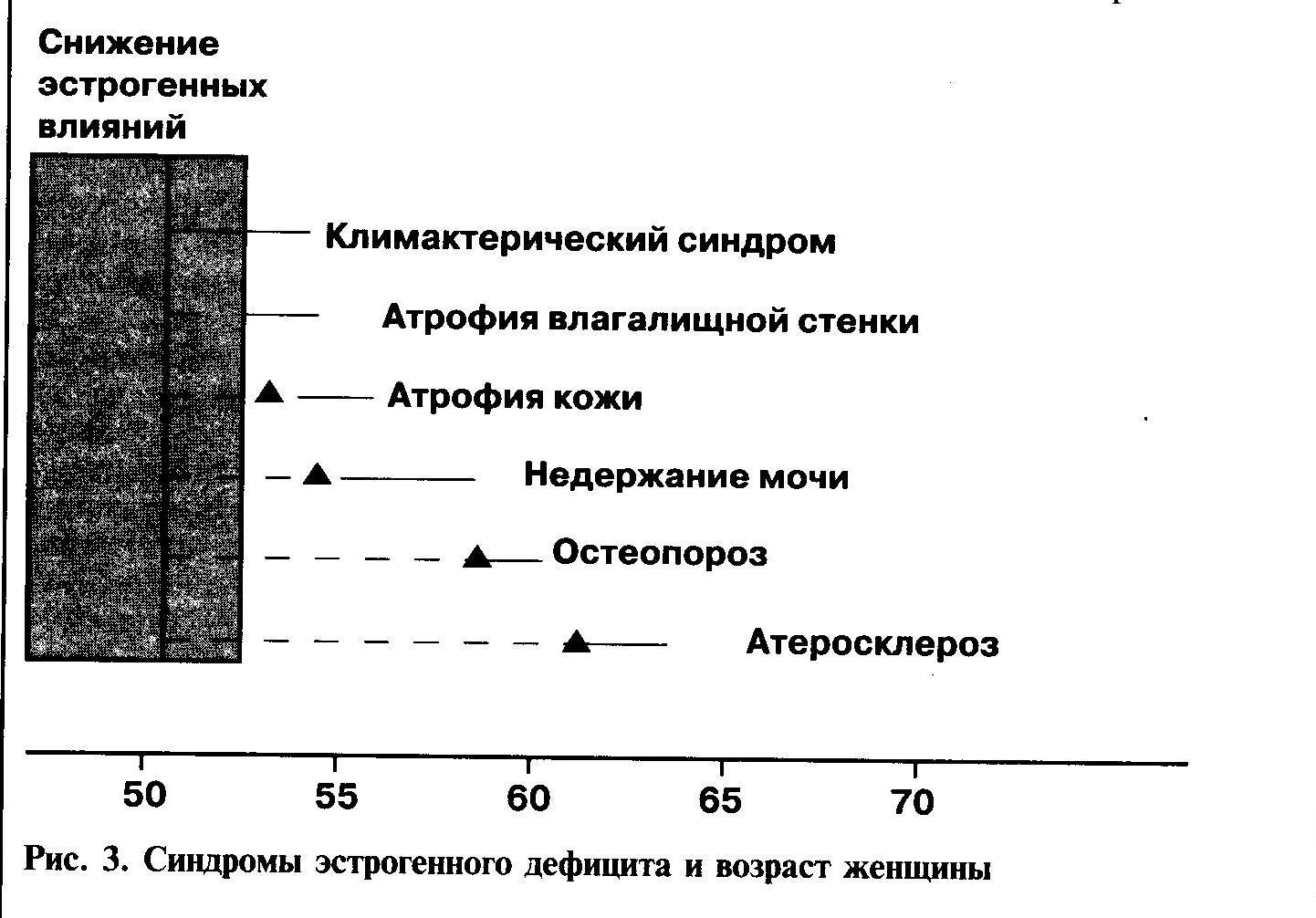 Менопаузальный синдром (менопауза)