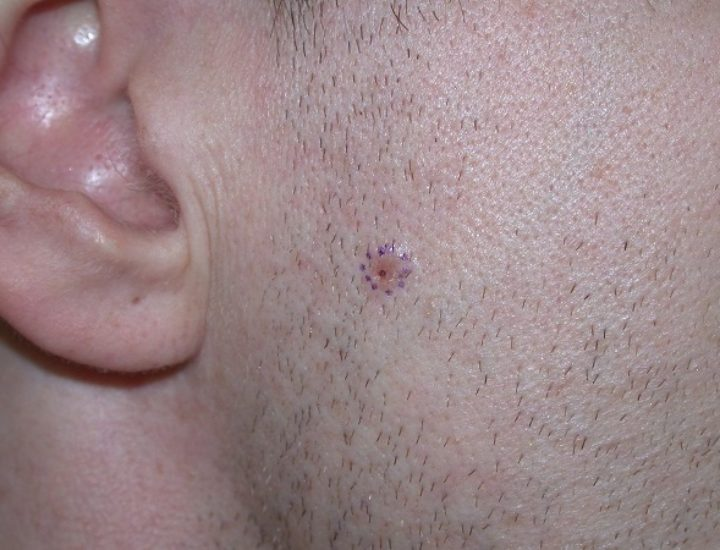 Отзыв о лечении базалиомы кожи на лице