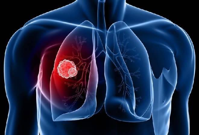 Операция на легких при туберкулезе