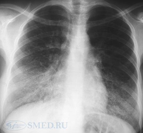 Пневмония у новорожденных - симптомы, лечение, причины, последствия