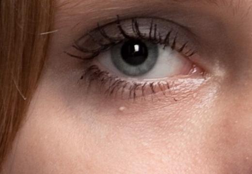 Милиумы на лице – как избавиться на лице в домашних условиях
