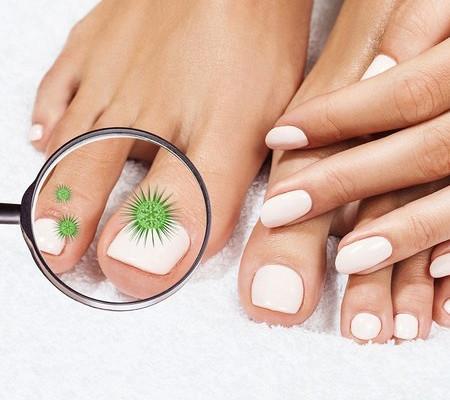 Исчерченность на ногтях что означают. почему появляются продольные бороздки на ногтях? точечные углубления на поверхности ногтей