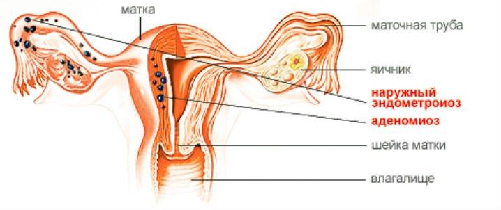 Аденомиоз матки: признаки, симптомы, лечение, признаки. как лечить аденомиоз матки