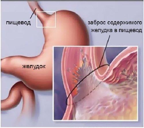 Болезни пищевода: симптомы и лечение
