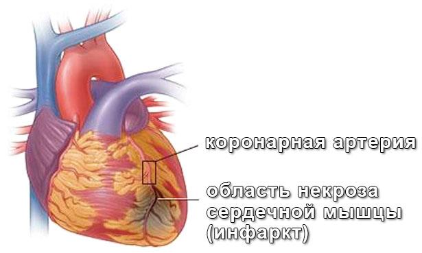 Что нужно знать о предынфарктном состоянии