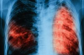 Признаки и способы лечения казеозной пневмонии при туберкулезе