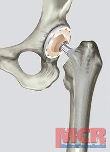 Упражнения перед эндопротезированием тазобедренного и коленного суставов