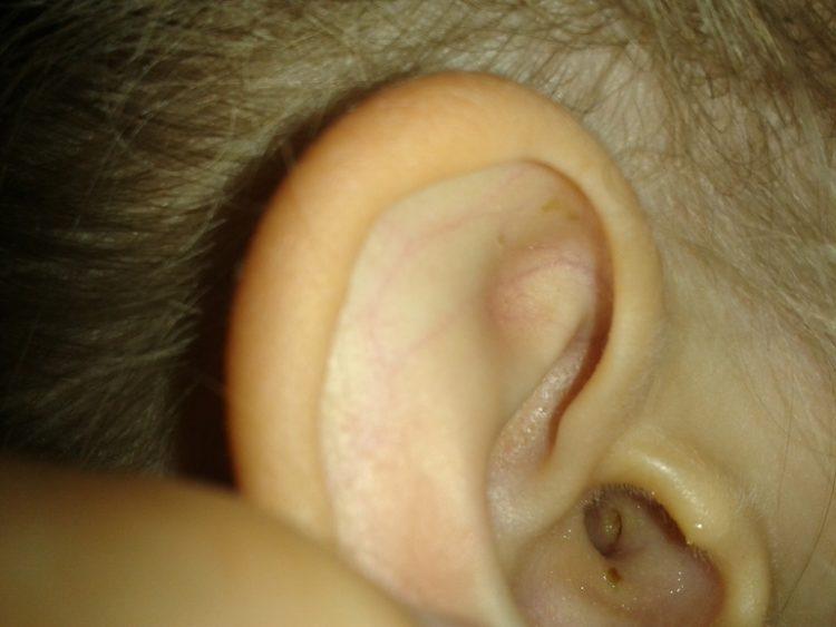 Прыщи в ушах и за ними: причины и лечение