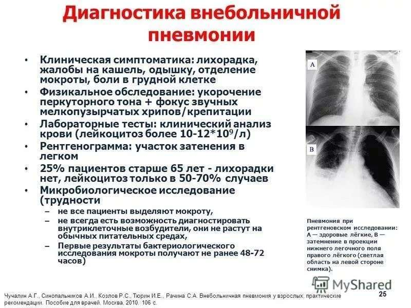 Семиотика и методы диагностики пневмонии. доцент, к. м.
