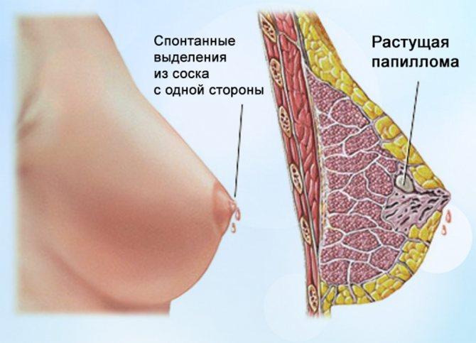 Выделения из молочных желез при беременности / mama66.ru