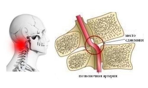 Что такое цервикокраниалгия, возникающая на фоне шейного остеохондроза и как её лечить?