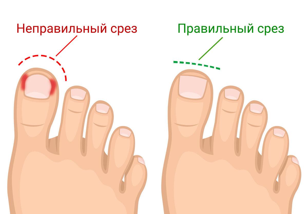 Хирургическое удаление вросшего ногтя в москве|стоимость операции в клинике|удалить вросший ноготь по низкой цене