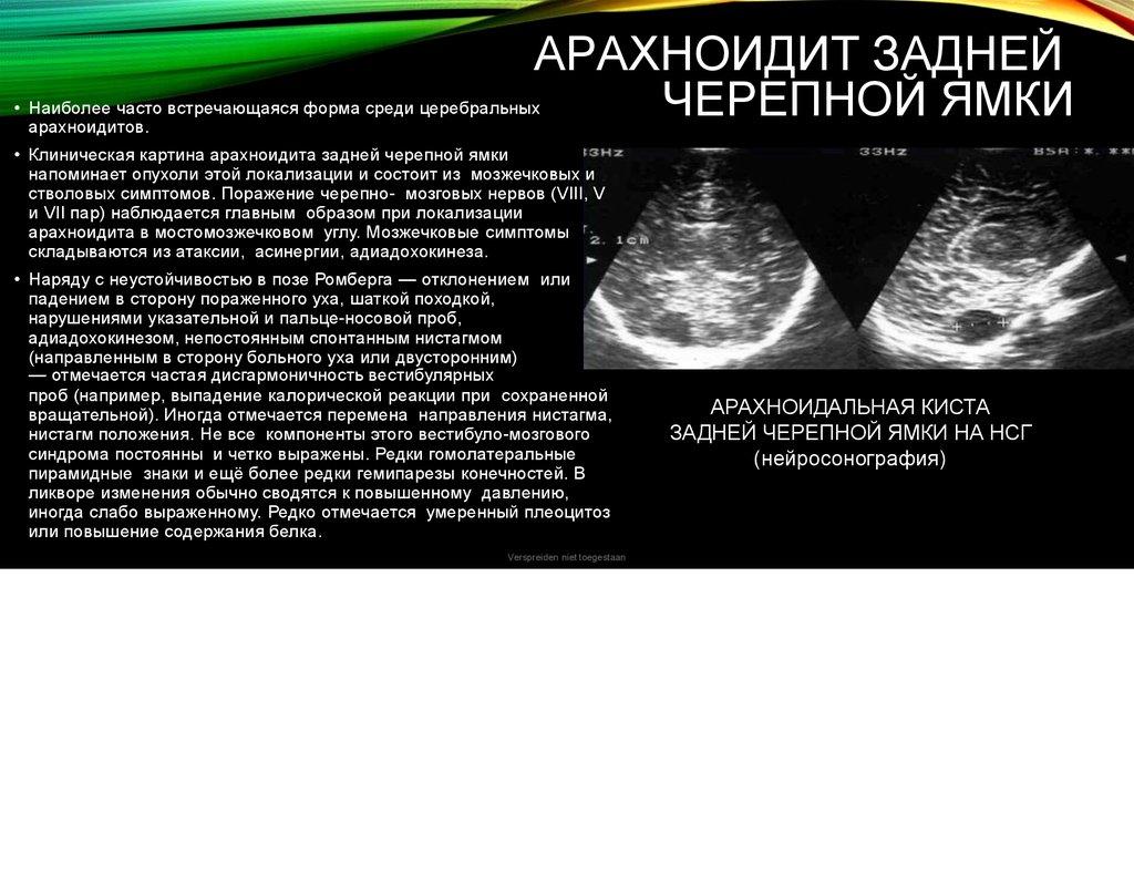 Как проявляется арахноидит: симптомы и лечение заболевания