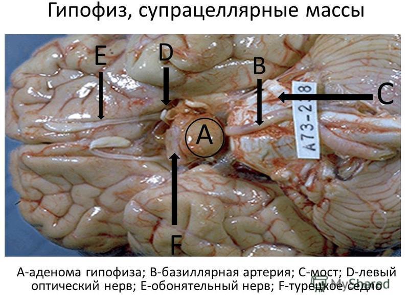 Что такое гипофиз головного мозга? его размеры и функции