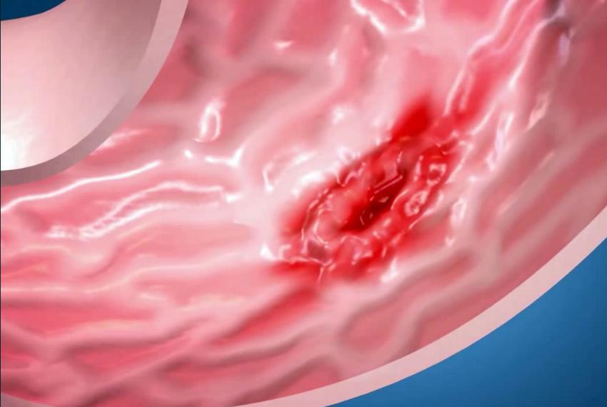Рак пищевода. симптомы и признаки, стадии, лечение и прогноз при заболевании.