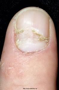 Грибок ногтей, лечение препаратами недорогими, но эффективными. выбор лучших средств