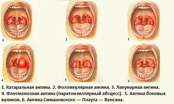 Стрептоцид таблетки от боли в горле — инструкция по применению, цена, состав и аналог
