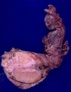 Туберкулез яичек у мужчин: отчего возникает и как лечится?