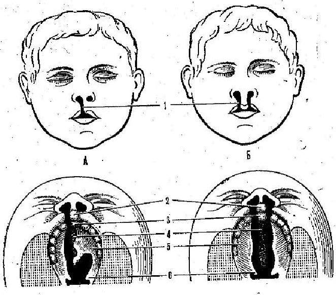 Причины и лечение патологий расщелины неба и губы