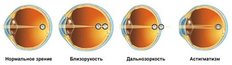 Аберрация оптической системы глаза — традиция